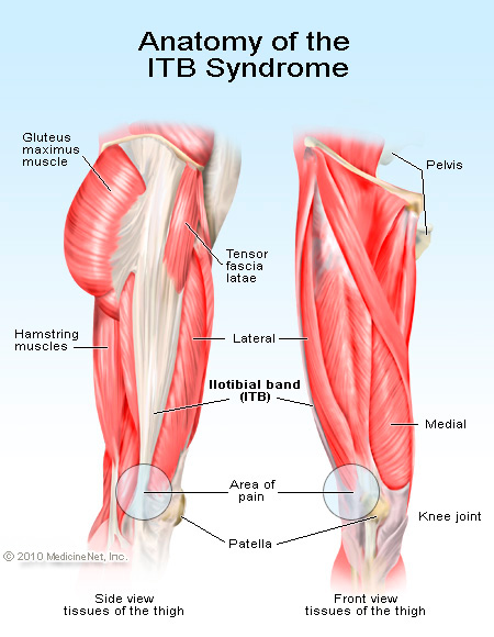 Anatomy of ITB Syndrome